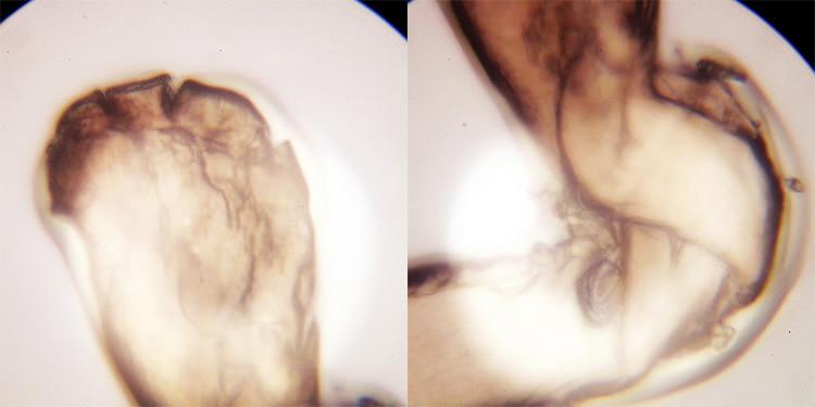 Корень человеческого волоса 640х