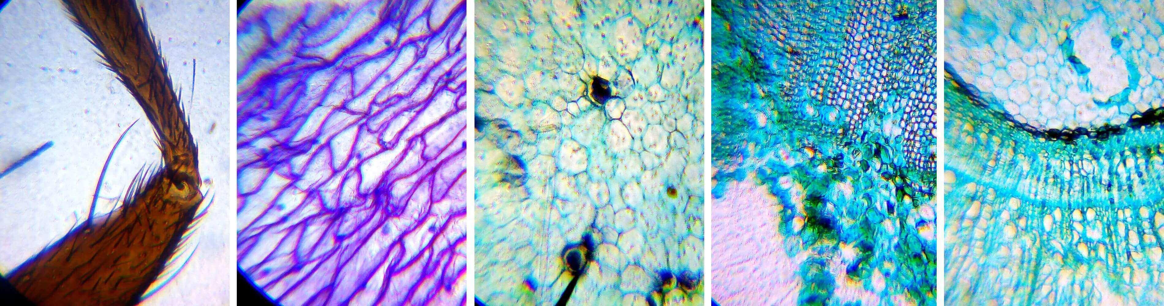 Фото в микроскоп Levenhuk LabZZ M101