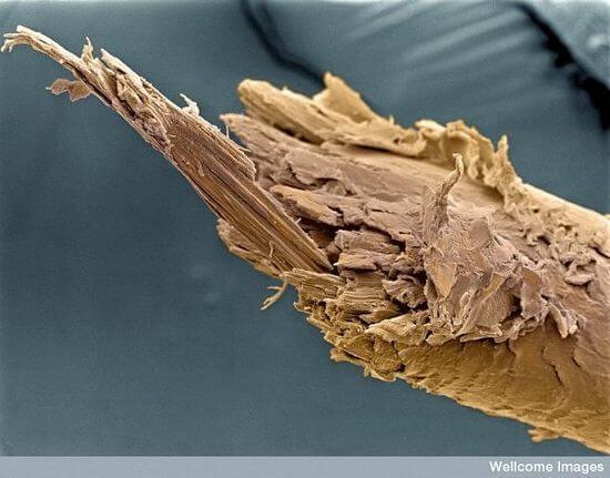Расщепленный человеческий волос