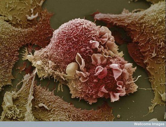 Раковые клетки легких