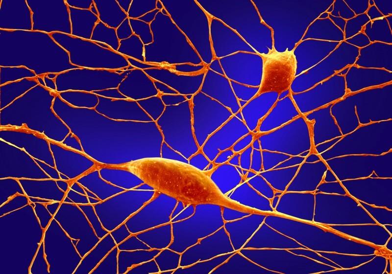 Нейроны пуркинье под микроскопом